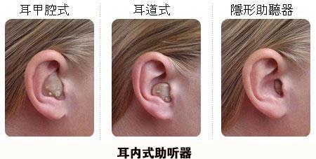 耳内式助听器.jpg